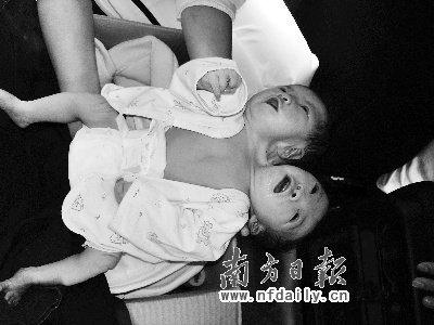 广东新生双头女婴被弃 身体状况较正常(图)