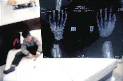 9岁男童双手被养母砍断续:赴北京求医(组图)