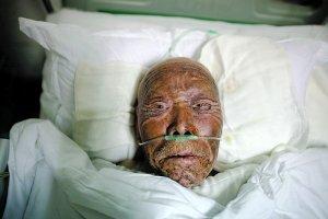 3月29日,江苏连云港市第一人民医院,东海自焚事件中被烧伤的92岁陶兴尧躺在病床上。本报记者 王申 摄
