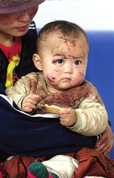 目光清澈的小男孩满脸伤痕。