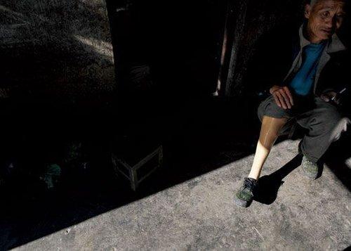 """""""假肢村""""之痛:人均不足一条腿"""