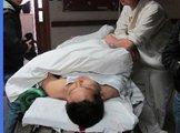 一名烧伤病人在抢救