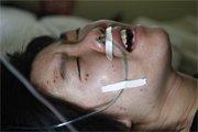 一名受伤乘客在医院接受救治