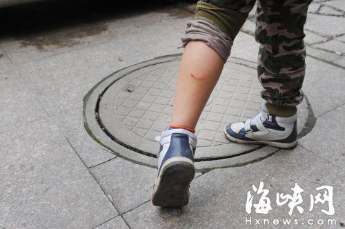 9岁男童给流浪狗喂食小腿被5条狗咬得鲜血直流