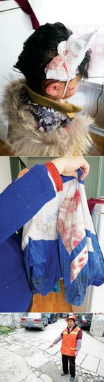 9岁女孩遭5条恶犬撕咬5分钟 全身血迹斑斑(图)