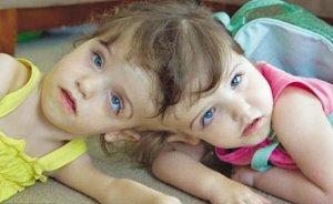 加拿大连体姐妹能通过对方眼睛看世界(组图)