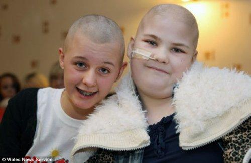 英国14岁女孩为安慰患病v女孩女生剃光头(图)聪明和的好友谈恋爱图片