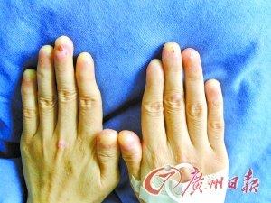 女孩患上罕见病 手脚全部没指甲(组图)