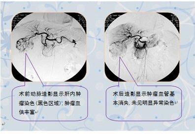 以经动脉治疗为主的肿瘤介入方法
