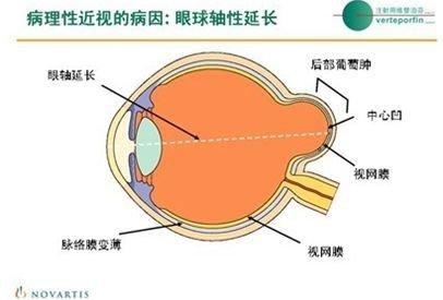 保健养生:正确预防病理性近视并发症