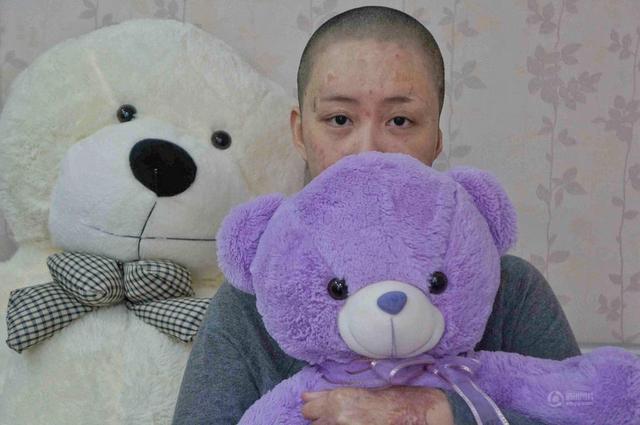 合肥少女被毁容案宣判 受害少女周岩获赔172万