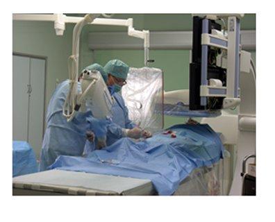 肿瘤的介入治疗