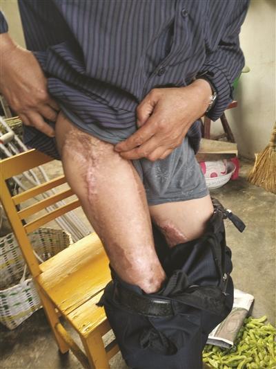 受辐射伤害的王尚文如今只能拄拐行动,身上的伤疤触目惊心,叫人不忍直视。 本组图片 梅建明 摄