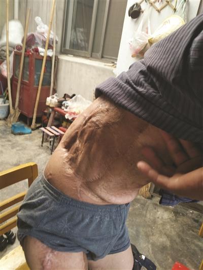 """南京男子2年前捡到""""铱链"""" 受辐射落下终身残疾"""
