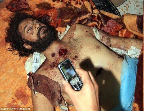 但是几分钟之后拍摄的照片却显示他已经死去,当时的状态是他四肢张开躺在一个担架上,颈部和胸部中枪,满身是血。