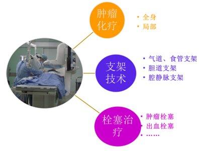 什么是肿瘤的介入治疗