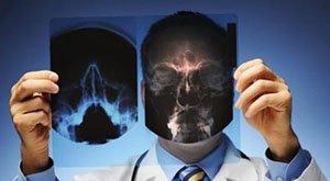 什么将中国推向肺癌第一大国