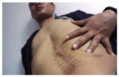 男子做摘除脾脏手术后左肾消失 医生否认切除