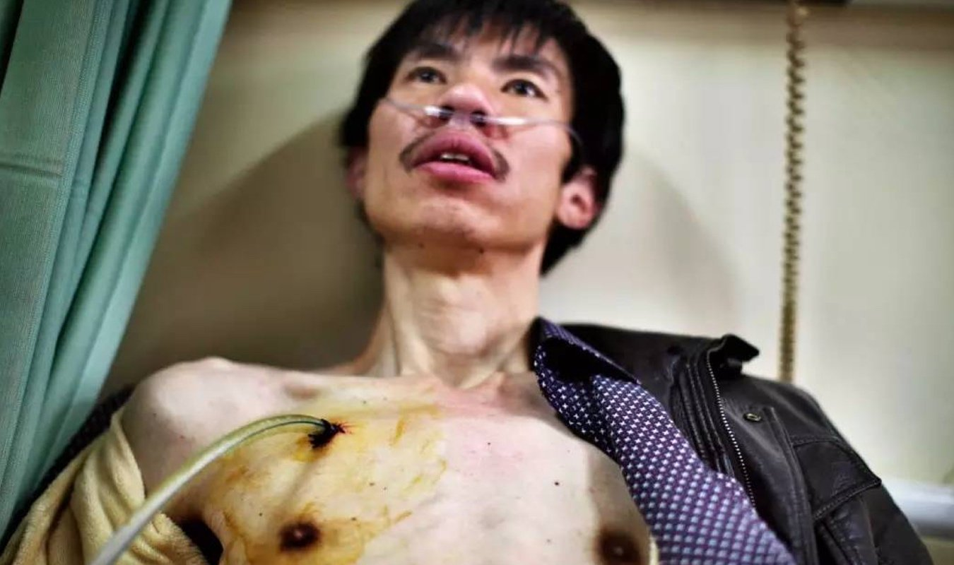 当时他的肺泡已经破裂,对肺部造成了压力。医生在他的胸腔上切开一个小口,把一根塑料管插到他右边的肺腔里,通过按压把肺里的空气排出来。《一个尘肺病家庭的爱与绝望》,河南/陕西,2011-2013