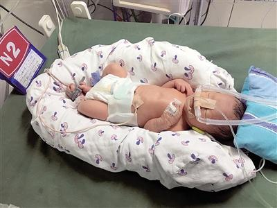 身高88厘米袖珍女孩产子:男婴重4斤体长41厘米