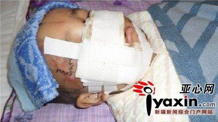2岁男童逗毛驴被咬伤脸部毁容(组图)