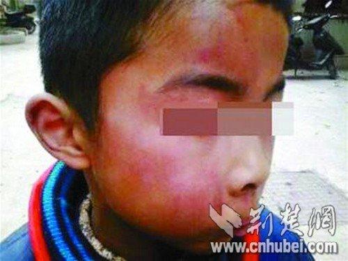 九岁童弄响越野车警报器 被绑至小巷毒打(图)