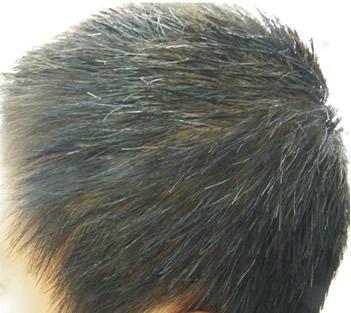 男性如何预防生白发 白发如何变黑_新闻_腾讯