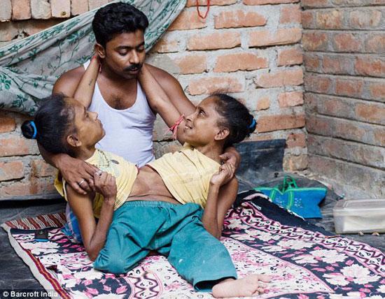 印度连体姐妹与男子一见钟情 Ganga蜘蛛姐妹是双胞胎3人决定共度