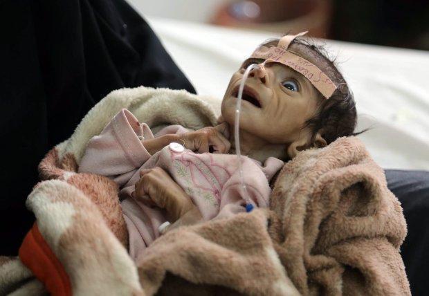 战争亡魂!也门婴儿因严重营养不良离世