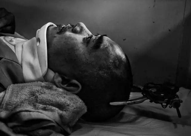 2008年5月23日,四川省绵阳市火车站。汶川地震中受重伤的29岁的李德强躺在伤员专列上。