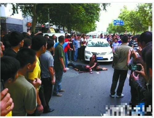 西安市民开日系车被钢锁重击头部 颅骨被砸穿