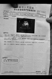 """男子体检报告称""""子宫""""正常 医师登门致歉"""