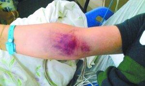 揭露北京:男子吃羊肉串致全身瘀血斑 血液检出鼠药成分
