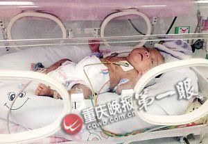 重庆早产男婴仅2斤重 喂奶一毫升需一小时(图)