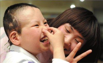 """""""半脑男孩""""圆梦北京将回家 曾做四次开颅手术"""