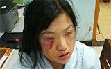 因输液滴壶有空气 患者家属殴打护士