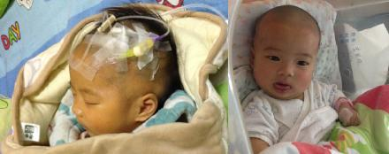 广西90后父母切肝救女 父亲捐肝失败母亲接力