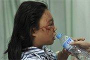 12岁小女孩叶子(化名)接受治疗