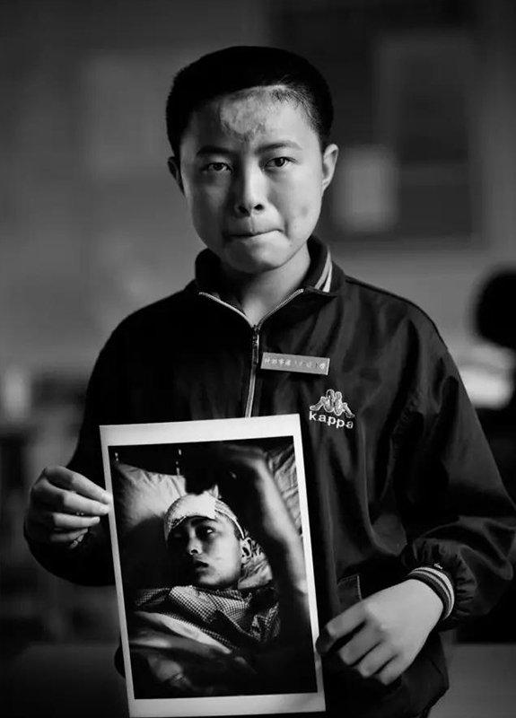 """2009年5月6日,四川省什邡市湔氐镇湔氐中学。""""汶川地震""""1周年,地震幸存者15岁的姜刘拿着地震后脑外伤失语躺在病床上的照片。现在,他是湔氐中学学生。"""