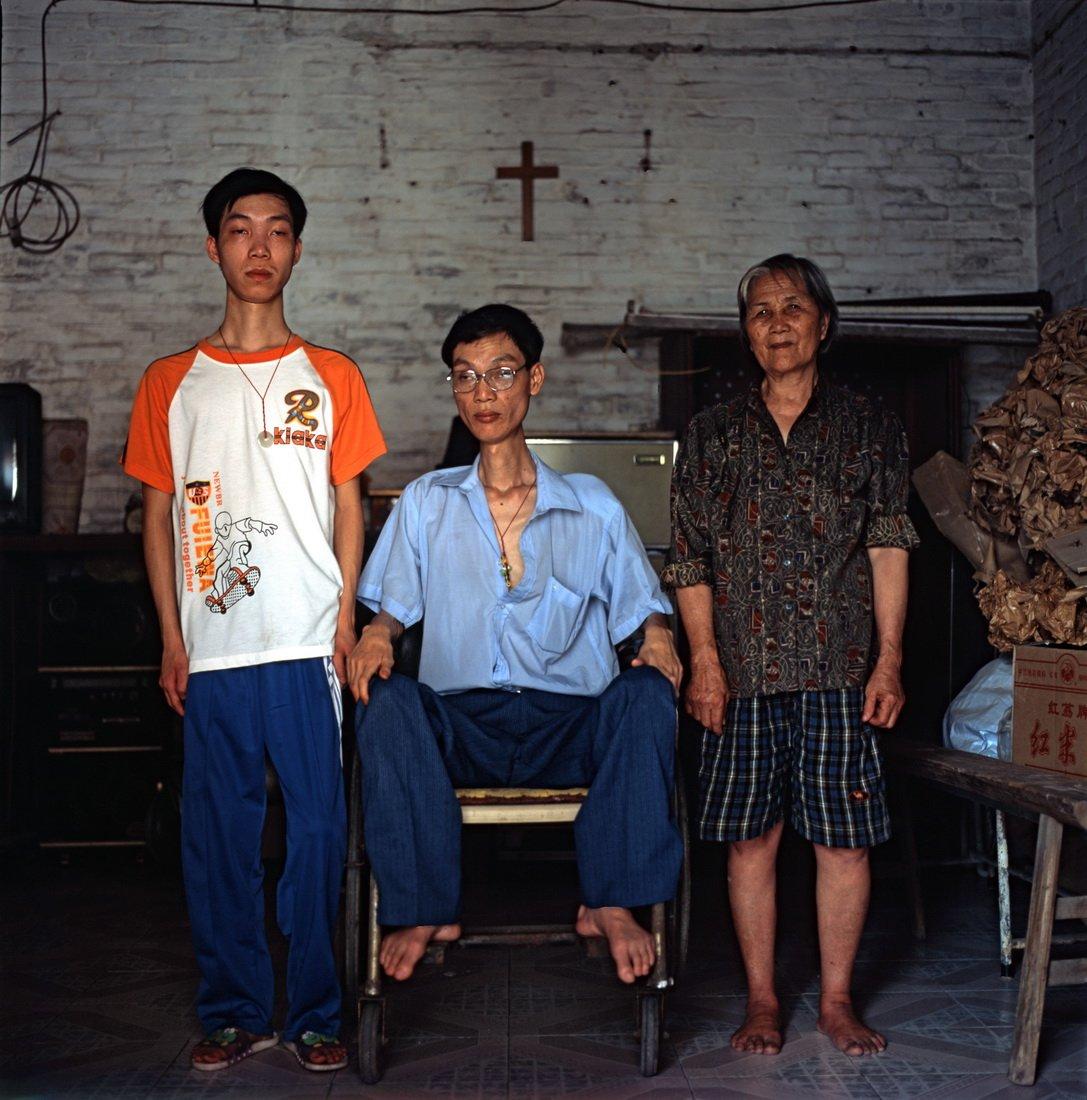 【在线影展】中国的罕见病人群