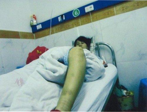 孕妇术后躺在医院中