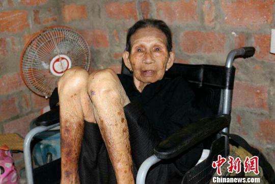 """海南最后一个诉讼日政府""""慰安妇""""受害者含恨去世"""