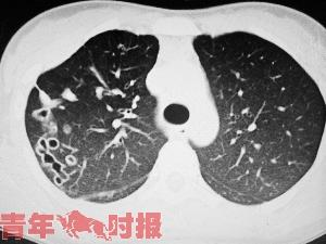 小夏的CT片上可以看到右肺有很多空洞。