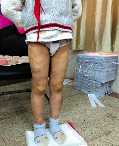 男童疑遭养父母虐待 全身布满百条红血印(图)