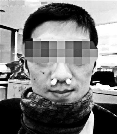 正常小孩鼻孔结构图