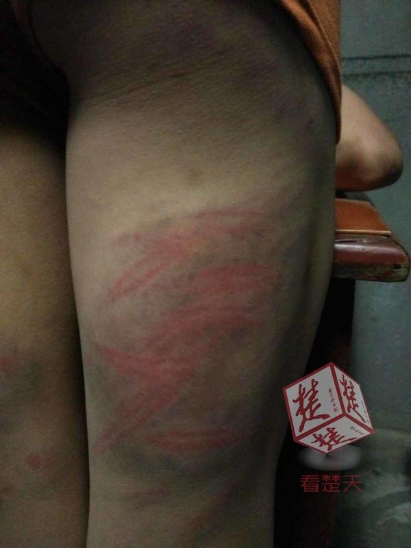 11岁留守男童做错题被老师抽打 浑身血痕累累