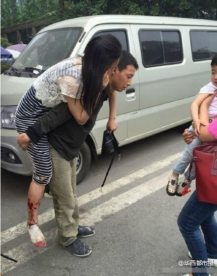 母亲为保护儿子被恶犬咬伤 身上被咬19处伤口