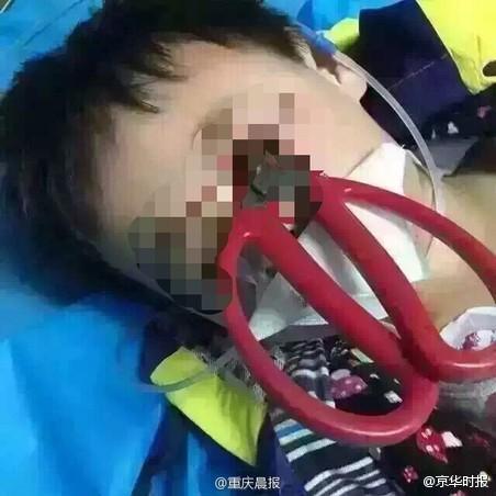 四川男孩不慎摔倒剪刀插入眼睛 尚未脱离危险