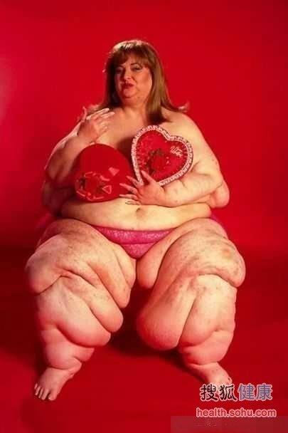 组图:看看世界上最胖的人怎么生活
