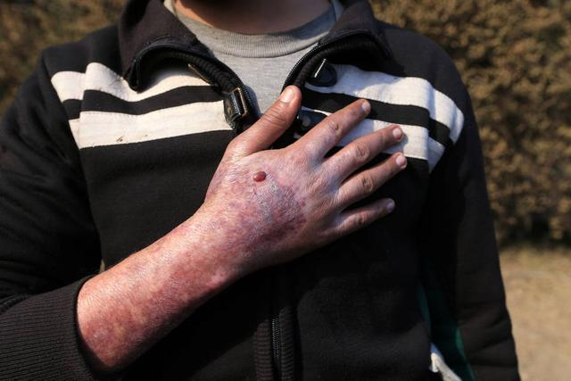 IS或在伊拉克摩苏尔使用化学武器 5岁女孩皮肤烧伤碳化